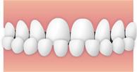 受け口・下顎前突(かがくぜんとつ)のイメージ