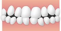八重歯・叢生(そうせい)のイメージ