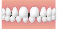 すきっ歯・正中離開(せいちゅうりかい)のイメージ